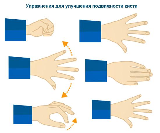 Домашняя реабилитация рук